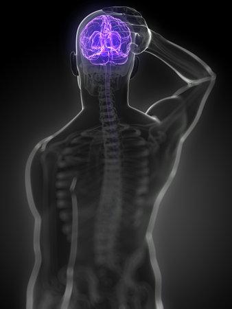 medicina ilustracion: 3d rindi� la ilustraci�n m�dica - dolor de cabeza