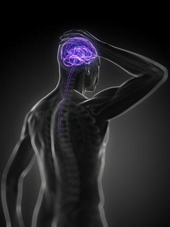 3D, rendu, illustration médicale - des maux de tête
