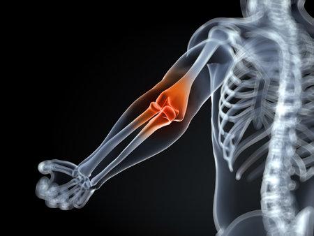 bursa: 3d rendered medical illustration of an elbow bursitis