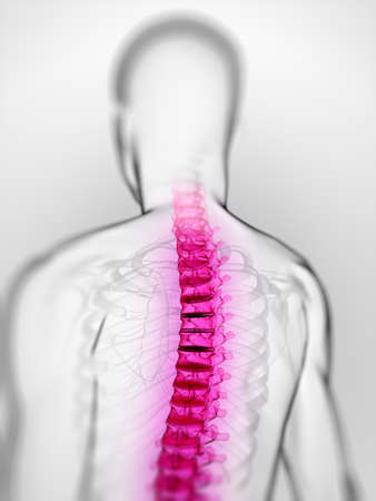 3d rendered scientific illustration of a painful spine Stock Illustration - 12585780