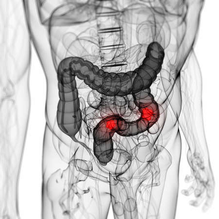 3d rendered scientific illustration of a colon tumor illustration