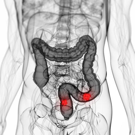 colon: 3d ha reso l'illustrazione scientifica di un tumore del colon