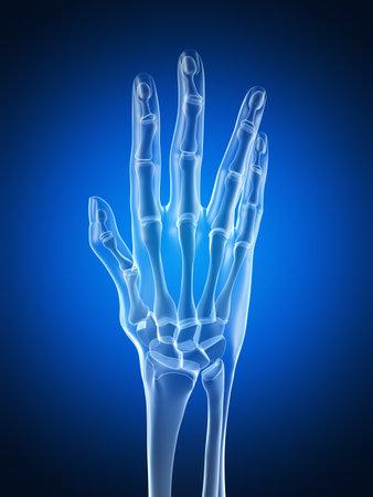 distal: 3d rindió la ilustración de una mano artrítica