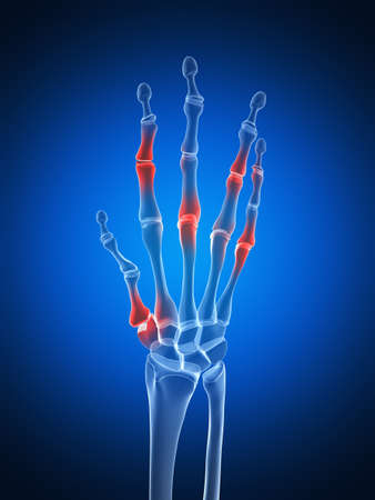 distal: 3d rendered illustration of an arthritic hand