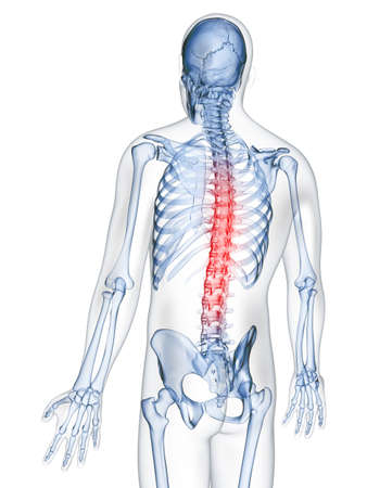spine pain: 3d rendered illustration of a painful back