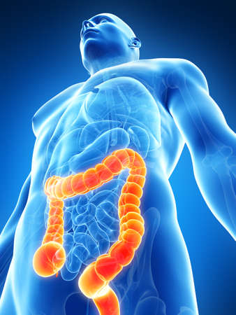 inflamed: 3d rendered illustration of the male colon
