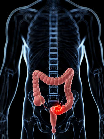 colon: 3d rendered illustration of the male colon - cancer  Stock Photo