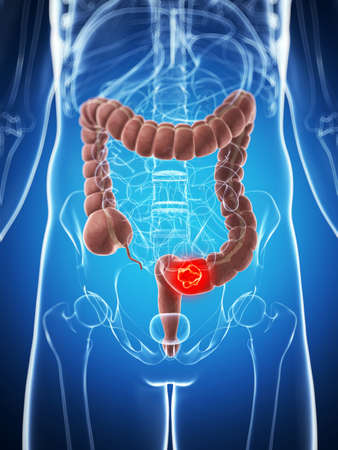 colon cancer: 3d rendered illustration of the male colon - cancer  Stock Photo