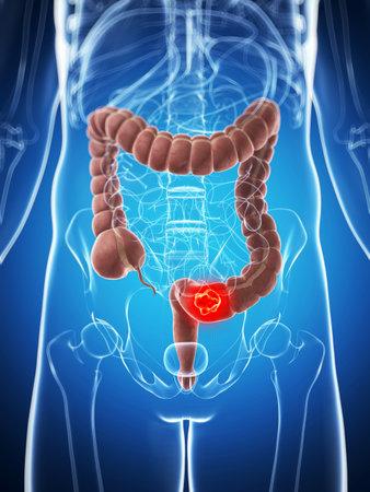 intestino: 3d rindi? la ilustraci?n del colon masculino - el c?ncer
