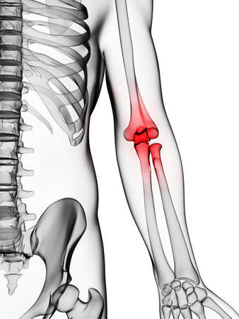 3d rendered illustration of a painful elbow illustration