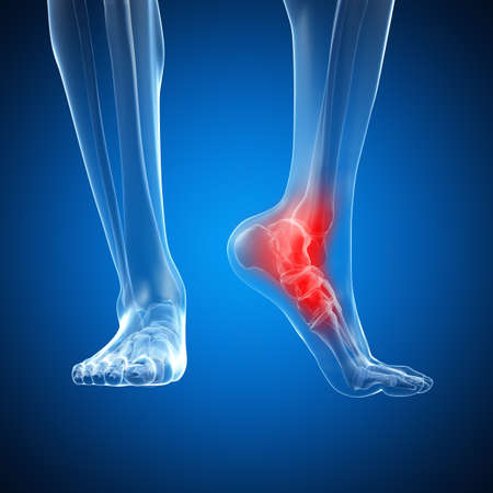 inflamed: 3d rendered illustration of a painful ankle Stock Photo