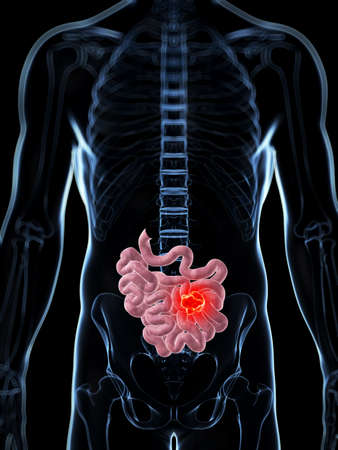 3d rendered illustration of the male small intestine - cancer Stock Illustration - 17906452