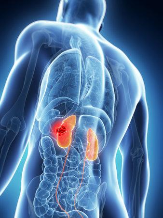 uretra: 3d rindió la ilustración de los riñones masculinos - el cáncer