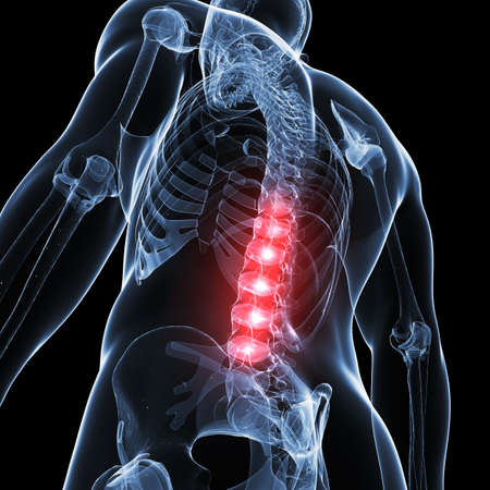 pain: 3d rendered illustration of a painful back