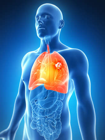 transparent male anatomy: 3d rendered illustration of the male lung - cancer