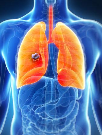 pulmon sano: 3d rindi� la ilustraci�n de pulm�n masculino - el c�ncer
