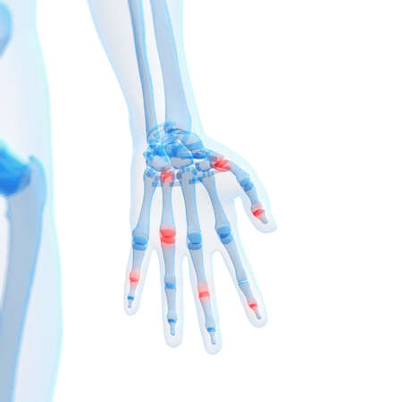 metatarsal: 3d rendered illustration of painful finger joints Stock Photo