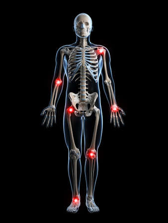 rheumatism: 3d rendered illustration of painful joints Stock Photo