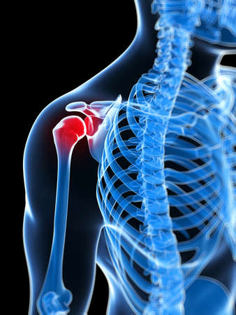 cuff: 3d rendered illustration of a painful shoulder