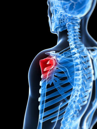 3d rendered illustration of a painful shoulder illustration