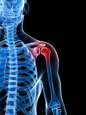 epaule douleur: 3d illustration rendu d'une épaule douloureuse Banque d'images