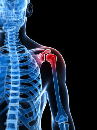 punos: 3d rindi� la ilustraci�n de un hombro doloroso