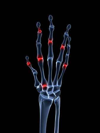 arthritic: 3d rendered illustration of an arthritic hand