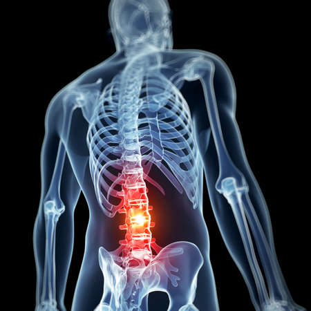 spina dorsale: Illustrazione di rendering 3D - mal di schiena Archivio Fotografico