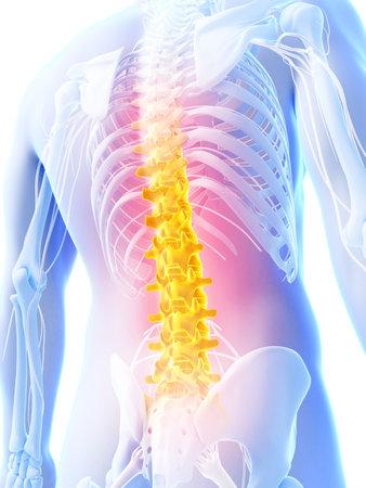 columna vertebral: 3d rindi� la ilustraci�n - dolor de espalda Foto de archivo