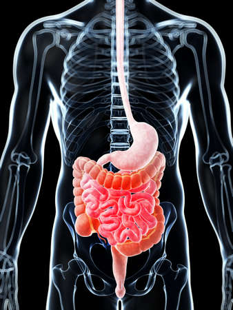 3d rendered illustration of a painful bowel Stock Illustration - 18071580