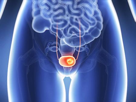 Ilustración 3d rendered - cáncer de vejiga