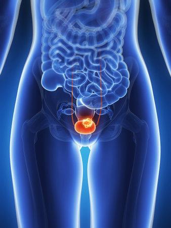 bladder cancer: 3d rendered illustration - bladder cancer