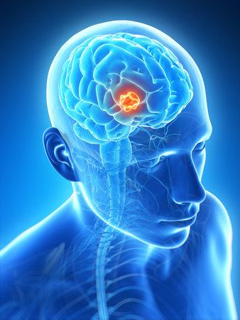 3d rendered illustration - brain tumor Stock Illustration - 18071407