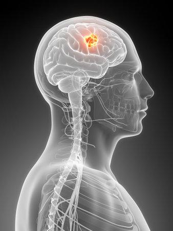 3d rendered illustration - brain tumor
