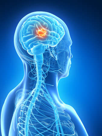 mri head: 3d rendered illustration - brain tumor