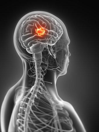 3d rendered illustration - brain tumor Stock Illustration - 18071165