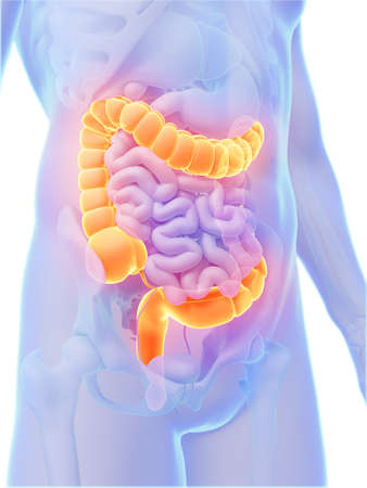 colon cancer: 3d rendered illustration - colon