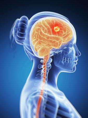 medical scanner: 3d rendered illustration -  brain cancer Stock Photo
