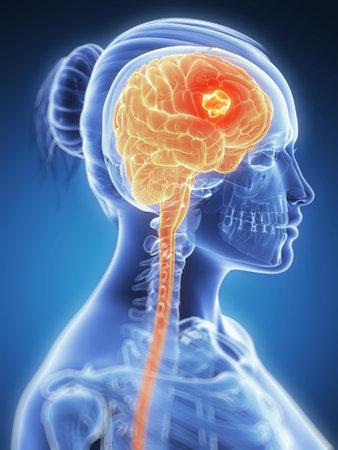 3d rendered illustration -  brain cancer Stock Illustration - 18071341