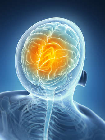 sistema nervioso: Ilustración 3d rendered - dolor de cabeza