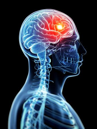 sistema nervioso: Ilustraci�n 3d rendered - dolor de cabeza