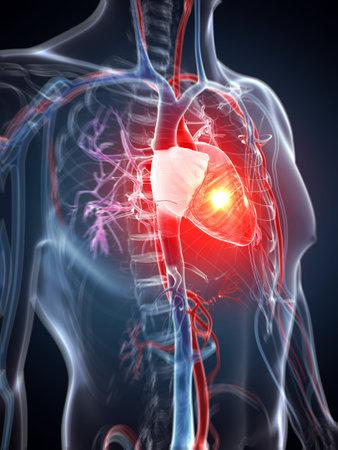 attacco cardiaco: Illustrazione di rendering 3D - attacco di cuore