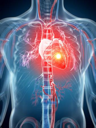dolor de pecho: 3d rindi� la ilustraci�n - ataque al coraz�n Foto de archivo