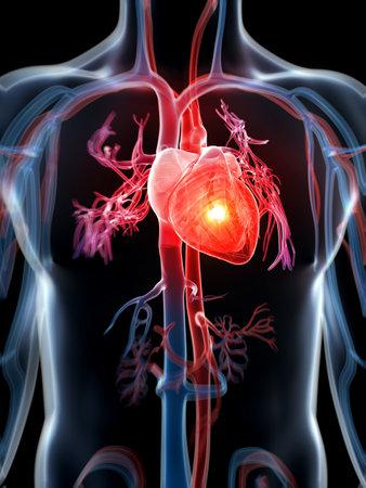 anatomia humana: 3d rindi� la ilustraci�n - ataque al coraz�n Foto de archivo