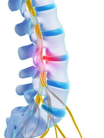 colonna vertebrale: Illustrazione di rendering 3D - ernia del disco