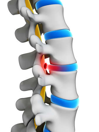 back ache: 3d rendered illustration - herniated disk