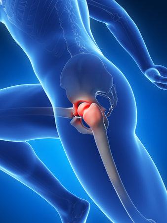 osteoarthritis: Illustrazione di rendering 3D - dolori articolari dell'anca