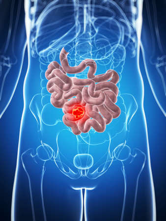 3d rendered illustration of the male small intestine - cancer illustration