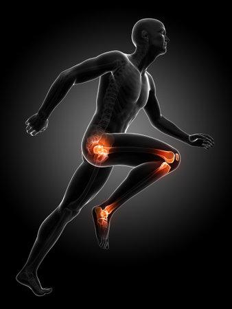 osteoarthritis: Illustrazione di rendering 3D - corridori giunti