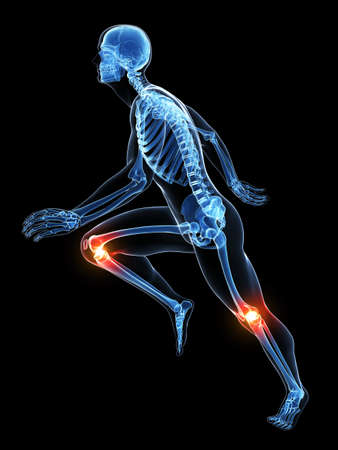 trauma: 3d rendered illustration - runners joints Stock Photo
